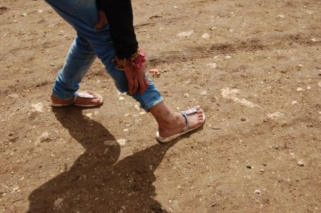 Skin diseases in the camps in Lebanon are spreading fast. Credit: Andreas Zinggl/Caritas Austria